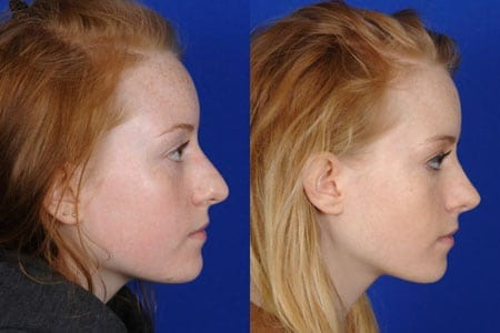 Rhinoplasty Surgery in Dubai : A long term solution for a flat nose