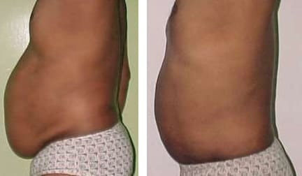 Look Good with Liposuction!