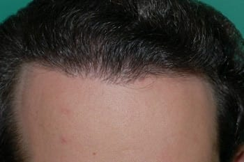Hair Transplant! The Solution to Hair Loss
