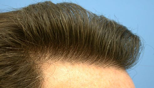 The New You! With Hair Transplant