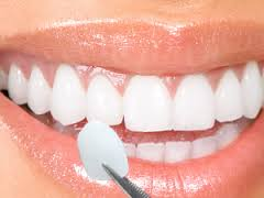Using dental veneers in Dubai