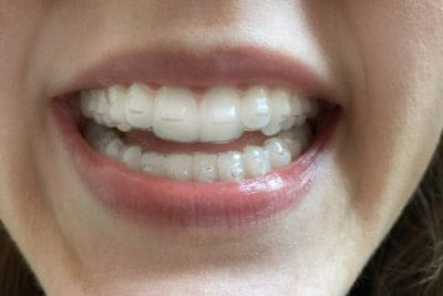Smile Confidently with Invisalign