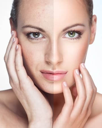 Look Young and Beautiful with Chemical Peel in Dubai
