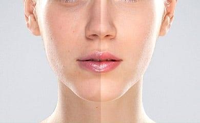 Best Laser Skin Treatment Clinic in Dubai
