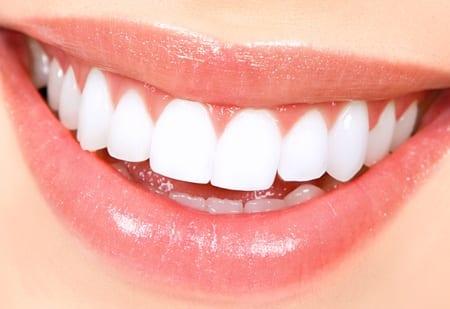 The Teeth Whitening Process