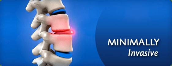 Minimal Invasive Surgery