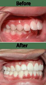 orthodontist-dubai