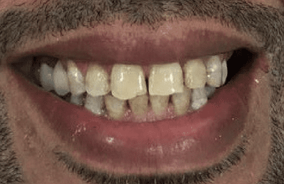Dental treatments dubai - Dental implants Denatla veneers