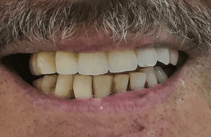 Dental treatments dubai - Dental implants Denatla veneers