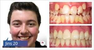 braces-case-study-2