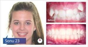 braces-case-study-3