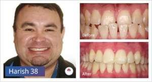 braces-case-study