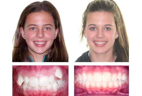 braces-case-study-lady