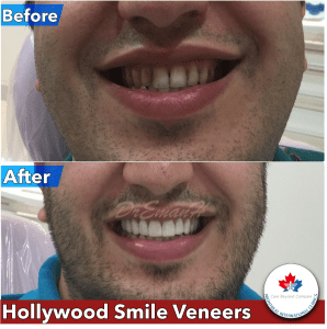 collage-veneers-Montreal-Clinic-298x300