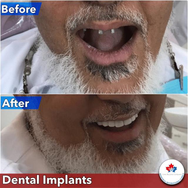 implants in dubai