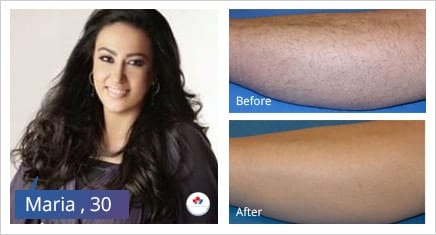 laser hair removal dubai