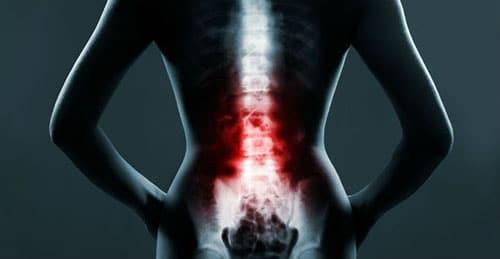 spinal-stenosis-dubai