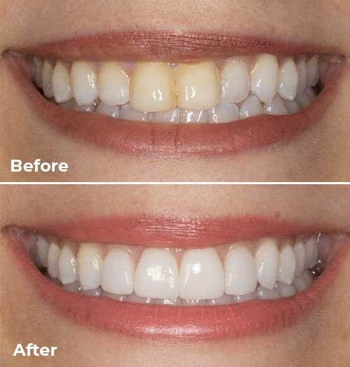 veneers-before-after