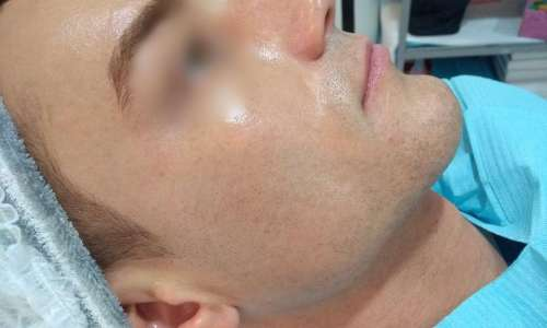 Dermatology Success Cases After