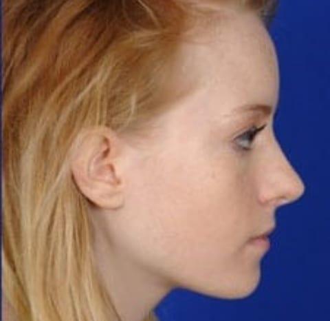 rhinoplasty1