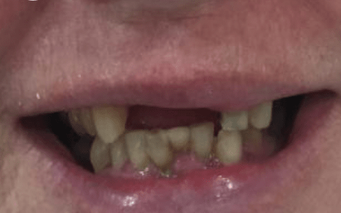 dental implants before2